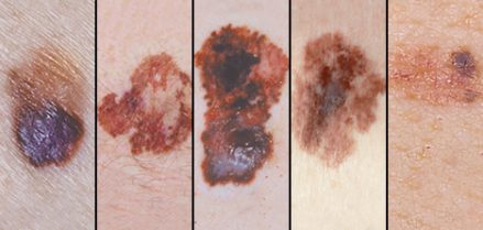 ds00575-melanoma-pictures-for-self-examination