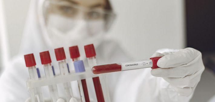 Test sierologici covid 19 Terni